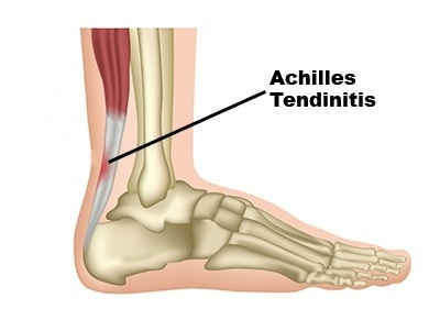 what Achilles tendinitis is