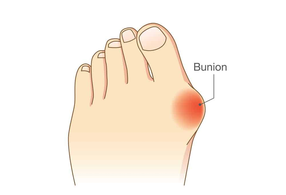 Finding The Best Running Shoes For Bunion 1