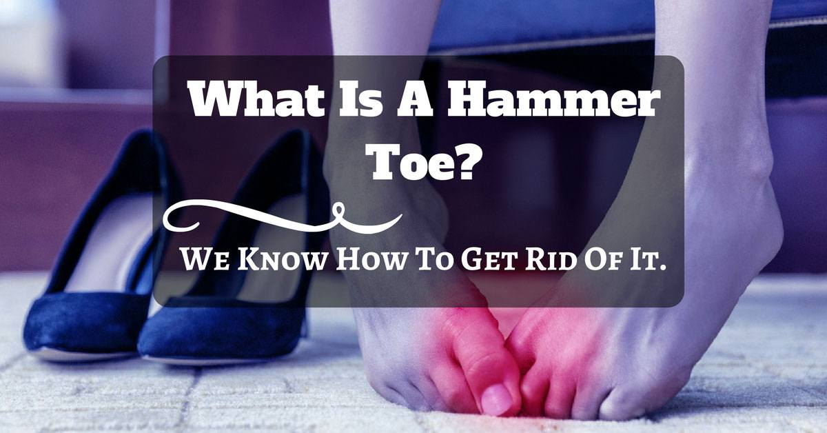 what is hammer toe